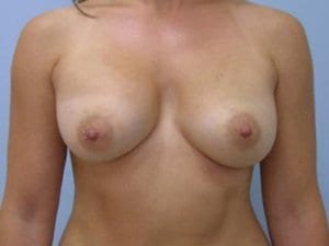 After-Photo-Breast-Augmentation-Surgery-Patient2-image1