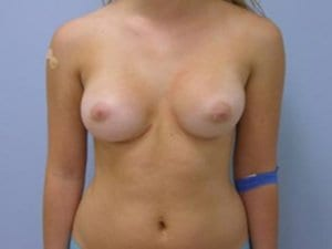 Breast-Augmentation-Surgery-After-Photo-Patient6-view1