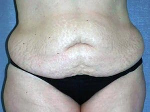 Tummy-Tuck-Before-Image-Patient7