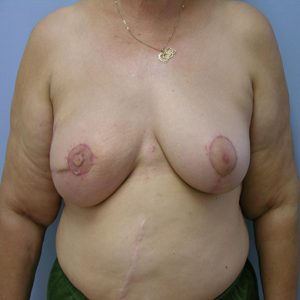 breast-cancer-reconstruction-after-photo-patient2