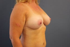 breast-enlargement-patient4-after-view2