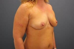 breast-enlargement-patient4-before-view1