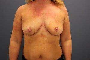 breast-enlargement-patient4-before-view2