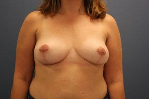 breast-implant-removal-patient1-after