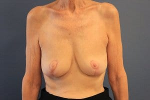 breast-implant-removal-patient2-after-view1
