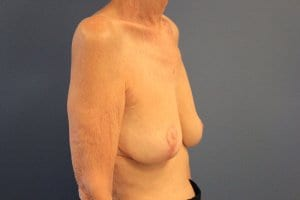 breast-implant-removal-patient2-after-view2