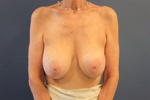 breast-implant-removal-patient2-before-view1