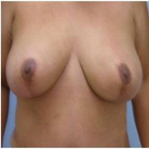 breast-lift-photo-after-patient1