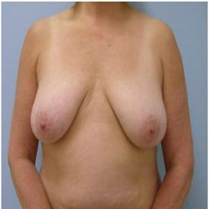 breast-lift-surgery-before-image-patient2