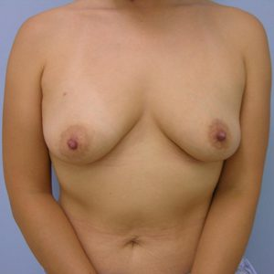 breast-reconstruction-before-image-patient3