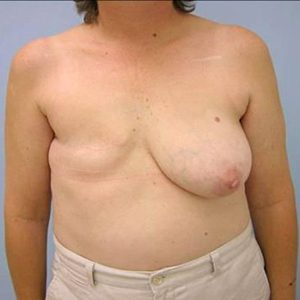 breast-reconstruction-surgery-before-patient1