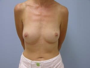 breast-reconstruction-surgery-before-photo-patient5