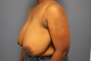 breast-reduction-patient2-before-view2