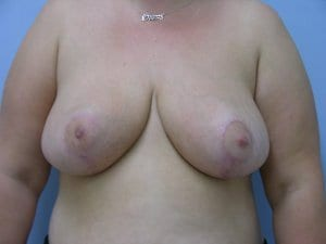 breast-reduction-patient3-after-image1