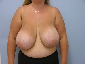 breast-reduction-patient3-before-image2