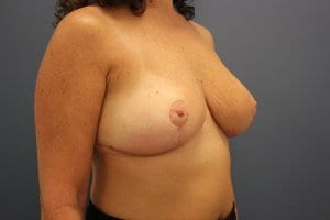 breast-reduction-patient5-after-image1