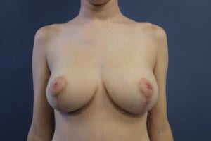 breast-reduction-patient9-after