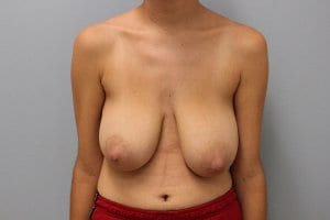 breast-reduction-patient9-before
