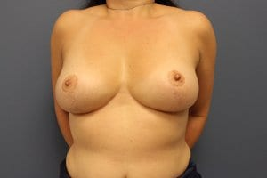 breast-reduction-surgery-patient6-after-photo