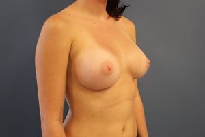 patient-8-breast-enlargement-after-view2