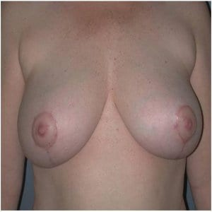 patient3-breast-lift-after-photo