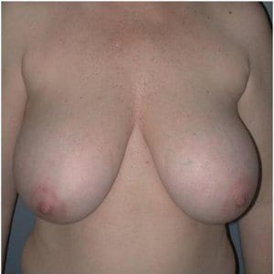 patient3-breast-lift-before-photo